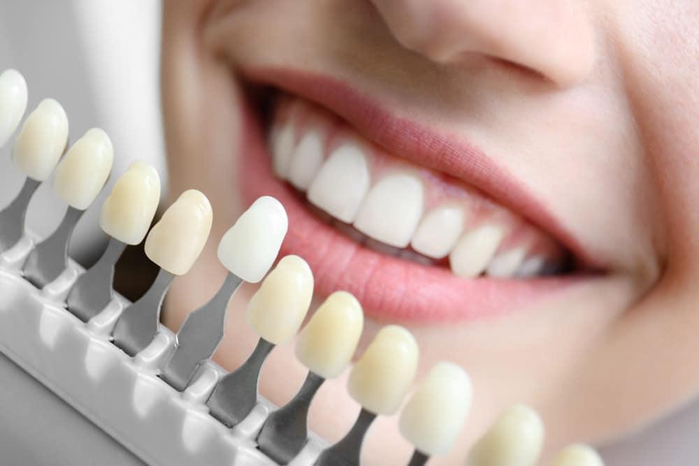 cosmetic dentistry st petersburg