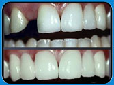 Front Tooth Cosmetic and Functional Replacement