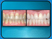 Composite Veneers Seminole