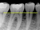 Periodontal Disease X-Ray