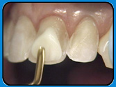 Restored Chipped, Broken, or Misshapen Teeth with Bonded Fillings. St. Petersburg/Clearwater