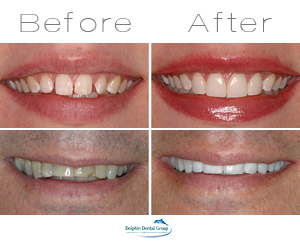 before and after cosmetic dentist pictures