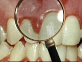Swollen Gums from Periodontal Disease